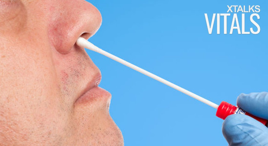 Genomic Diagnostic Could Use Nasal Swab to Detect Lung Cancer