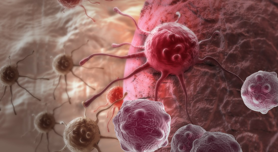 Study Finds Common Chemotherapy Could Contribute to Cancer Metastasis