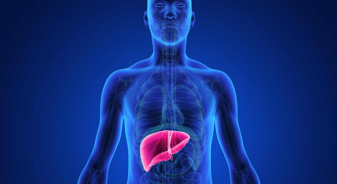 Does Non-Alcoholic Fatty Liver Disease Run in Families?