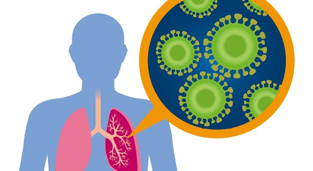 Pulmatrix to Initiate First-in-Human Trial for Inhaled Asthma Therapy