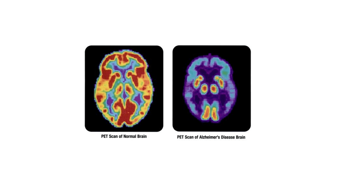 Here's Why Brain Biomarkers of Alzheimer's Don't Always Lead to Dementia