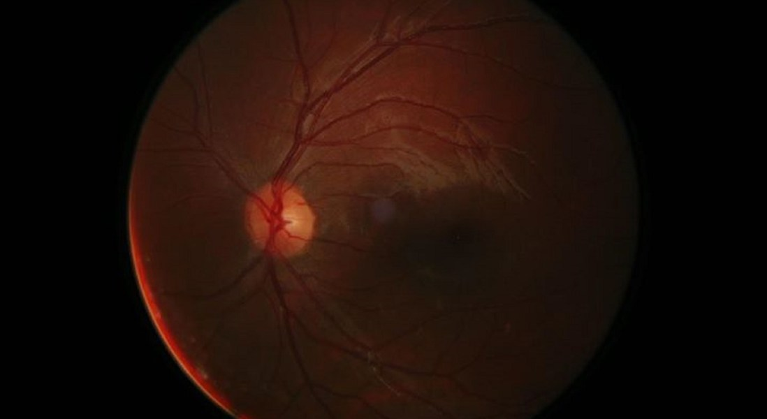 AI and Smartphone Used as Diabetic Retinopathy Diagnostic Tool
