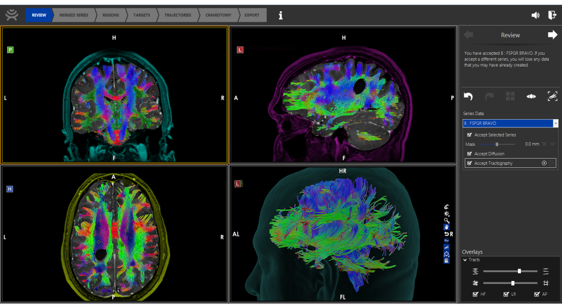 How Synaptive Medical is Transforming Neurosurgery