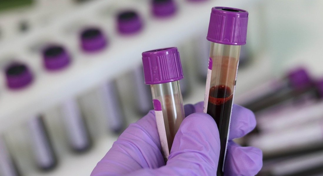 Is the Tide Turning for Liquid Biopsies?