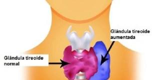 Hipertireoidismo Alimentação e efeitos