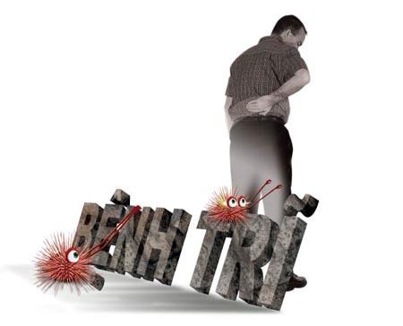 Bệnh trĩ giai đoạn từ nhẹ đến nặng