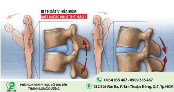 thoat-vi-dia-dem-mat-nuoc