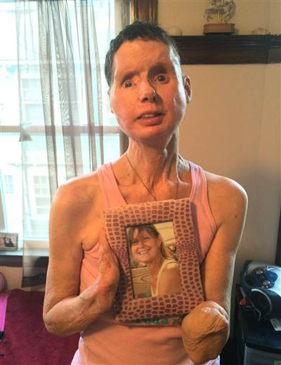 Courtesy of Shelly Sindland Photo via: Today: Charla in July 2015 holding a picture of herself before the the 2009 chimp attack.