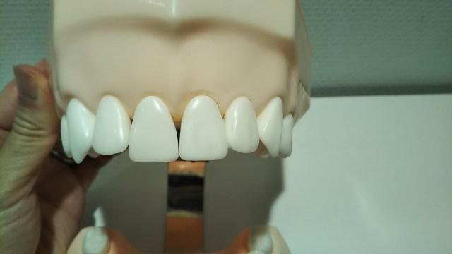 前歯の歯と歯の間
