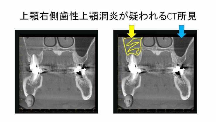 歯根破折による歯性上顎洞炎