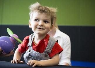 atasi cerebral palsy dengan terapi akupuntur