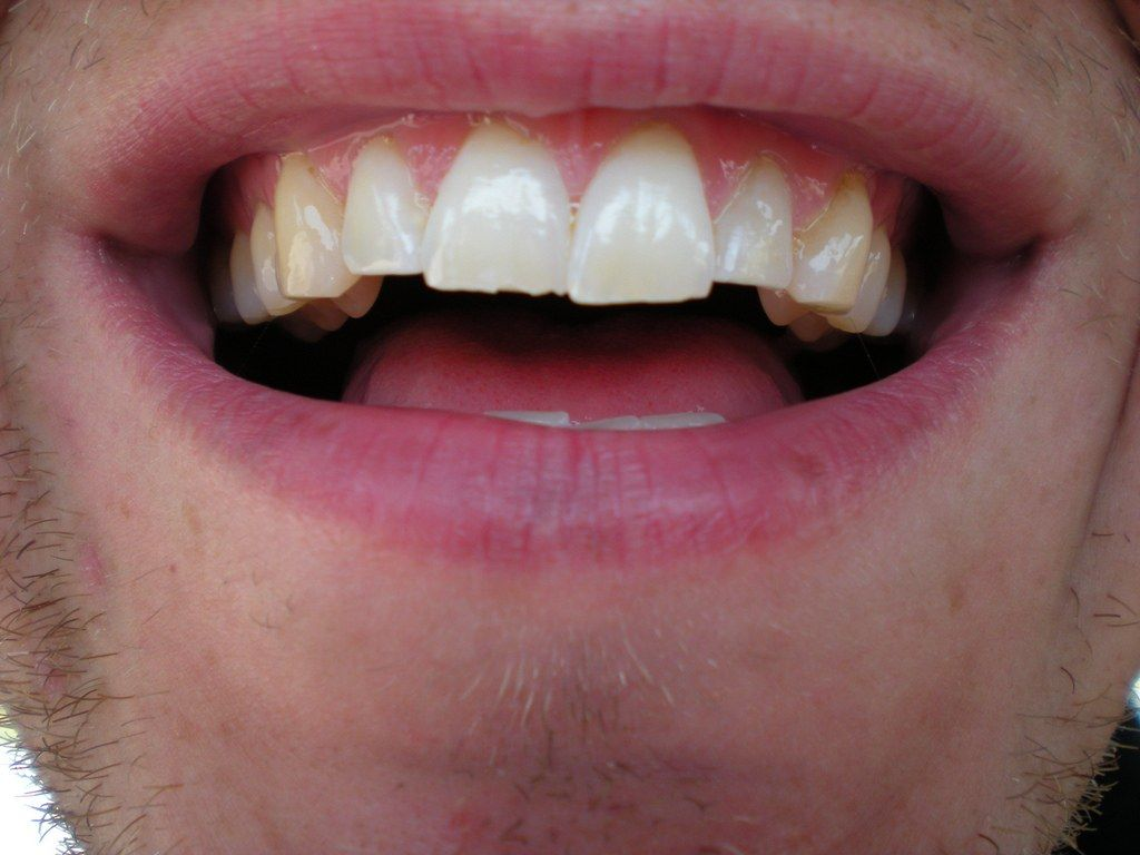 How much does it cost to fix a chipped tooth with images
