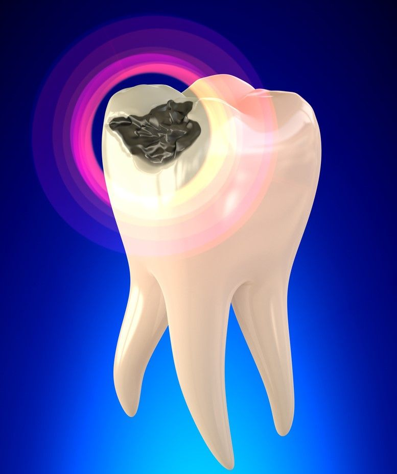 How much is it to fix tooth cavities fix teeth tooth