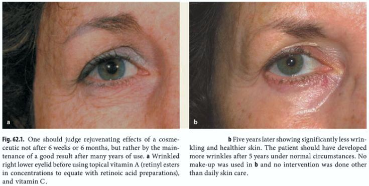 Before and after of 5 years daily use of retinol