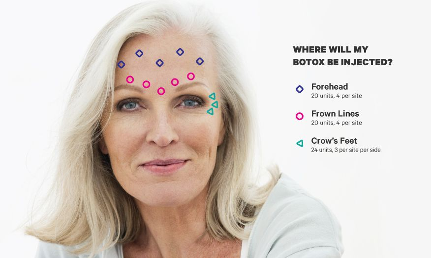 Botox forehead face guide what to know in simple
