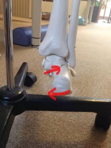 踵骨変位の画像