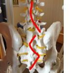 腰椎と仙骨の変位