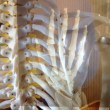 肩甲骨と手の関係画像