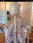肩甲骨の痛みに関しての記事へアクセスが多いので、皆さんが知らない原因を書いてみます。