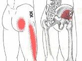 股関節の治療