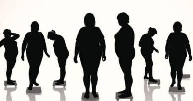 obezite-siralamasi