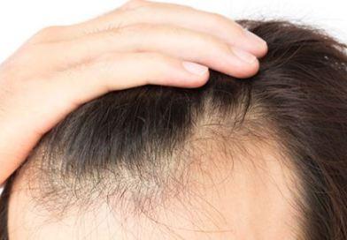 Saç İmplantı Nedir?