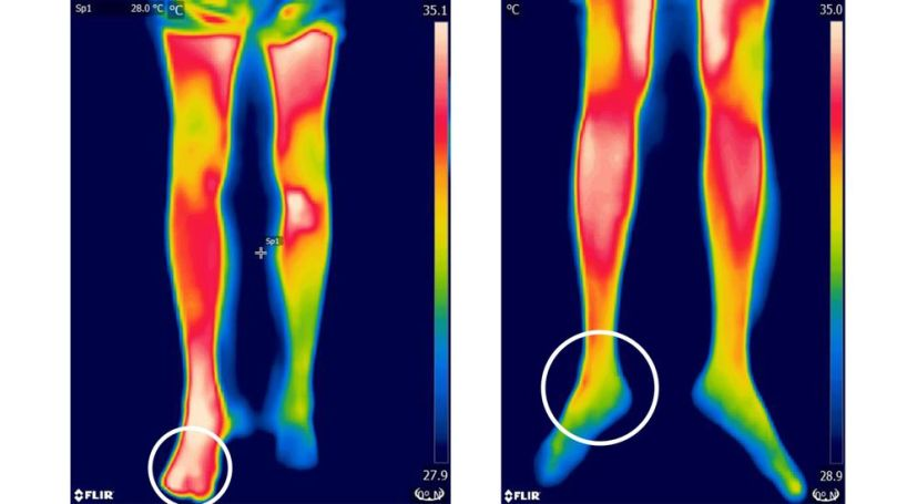 Inflammation caused by snake venom in a bite glows as hot spots on an infrared camera (left) compared to those without venom (Credit: P. Sabitha et al/Plos NTD)
