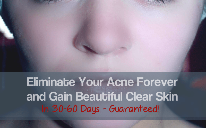 Eliminate Your Acne Forever and Gain Beautiful Clear Skin In 30-60 Days - Guaranteed!