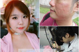保養–【雙連站】打擊坑疤肌! 臉部保養術