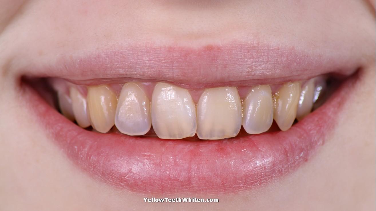 How to treat teeth enamel naturally