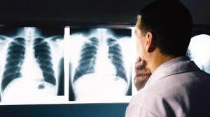 Röntgen ile kanser arasındaki şaşırtan ilişki