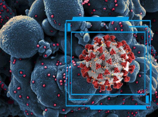 Şekil 8. Yeni Koronavirüs (COVID-19).