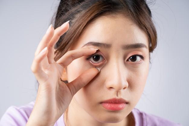Les yeux secs et les lentilles