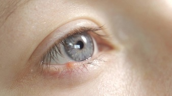 Les veines sous les yeux