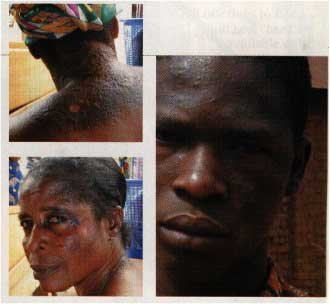 THIS SOUTH AFRICAN BROTHER AND SISTER ARE REGRETTING EVER BLEACHING NOW!