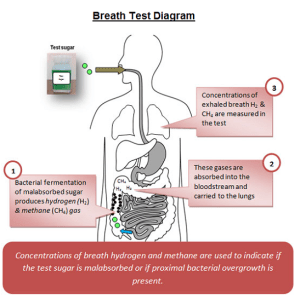 Breath Test  Alcohol Breath Test  Breath Test Chart  Alcohol Content Breath Test  How Many