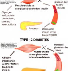 Venn Diagram Type 1 And 2 Diabetes Wiring A Light Switch From An Outlet Comparison Chart Of