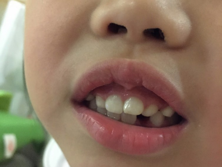 Another Tooth Gone