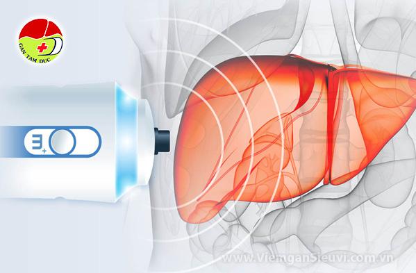 ung dung fibroscan trong tam soat ung thu gan xo gan