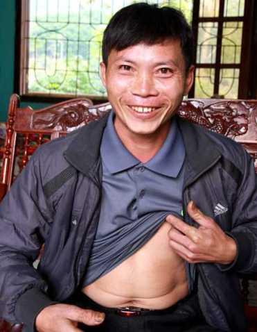 Anh Vạng được cứu sống, dù đã bị xơ gan cổ trướng giai đoạn cuối, bụng trướng phình