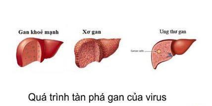 """Sự phát triểm """"âm thầm"""" bệnh nhân không hay biết cho đến khi bệnh chuyển sang xơ gan và ung thư gan. SỮNG SỐT TRƯỚC """"KẾT QUẢ …"""" KHI XEM THƯỜNG VIRUS VIÊM GAN SIÊU C xet nghiem viem gan c 1 2 300x150"""