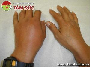 Một số hình ảnh biến chứng của bệnh gút (bệnh gout) bien chung benh gut bien chung benh gout 1ss
