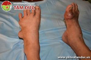 Một số hình ảnh biến chứng của bệnh gút (bệnh gout) bien chung benh gut bien chung benh gout 9ss