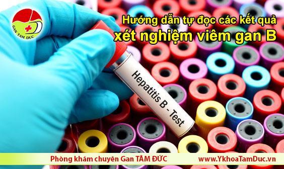 hướng dẫn tự đọc kết quả xét nghiệm viêm gan b Hướng dẫn tự đọc kết quả xét nghiệm viêm gan B tu doc ket qua xet nghiem viem gan b