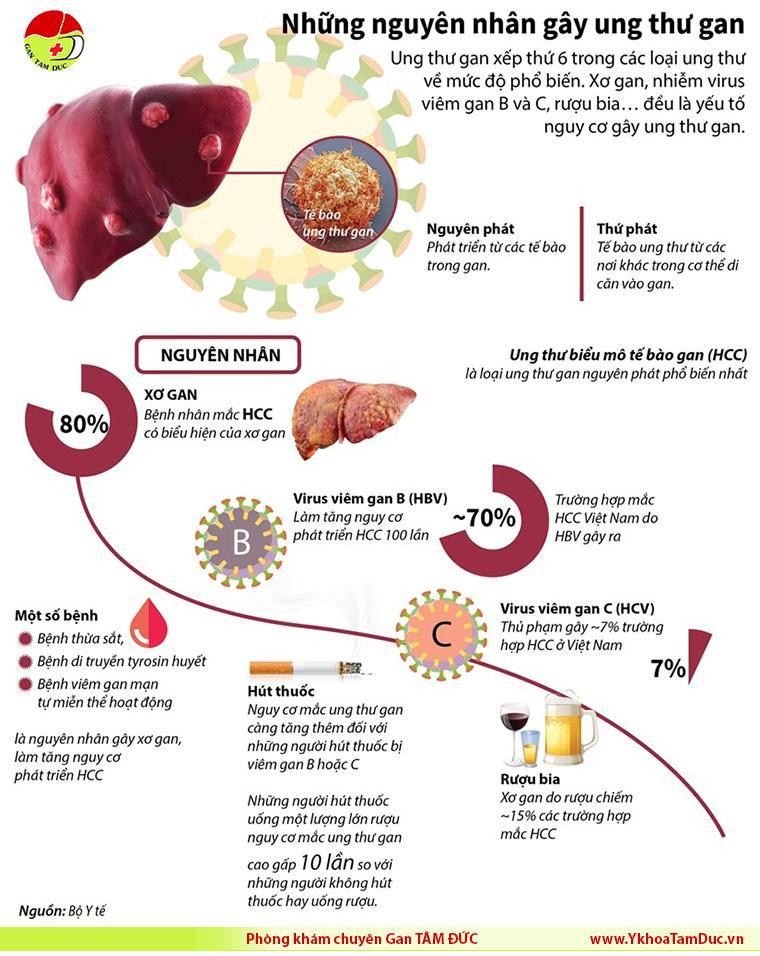 infographic nguyên nhân gây ung thư gan liver cancer [Infographic] Những nguyên nhân gây ung thư gan infographic nguyen nhan ung thu gan liver cancer