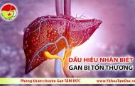 Những dấu hiệu nhận biết gan đang bị tổn thương