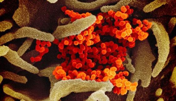 Cập nhật 7h ngày 19/2: Số người tử vong do virus corona vượt 2.000, Việt Nam cách ly 34 trường hợp nghi nhiễm hinh anh virus corona