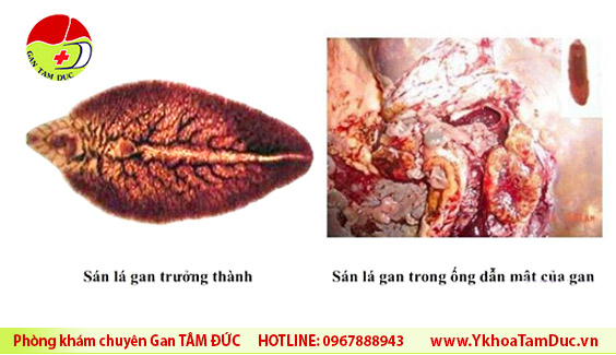 san la gan song ky sinh trong duong mat bo Ăn thịt bò sống, thịt bò tái có an toàn không ? san la gan song ky sinh trong duong mat bo