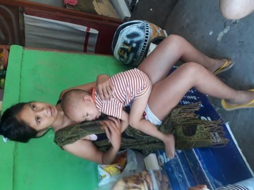 Planing surgery help for slum child