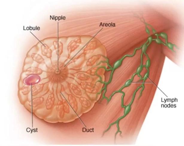علاج سرطان الثدي في تايلاند